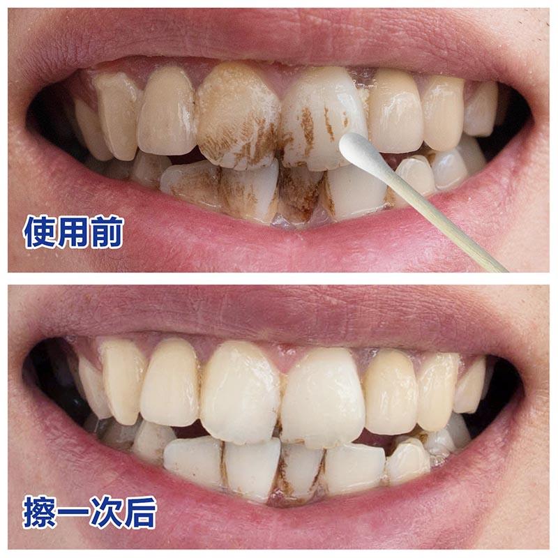 歯潔バイ-リン洗浄黒牙黄牙こするつまり白美白牙歯リニメント剤マダラ純