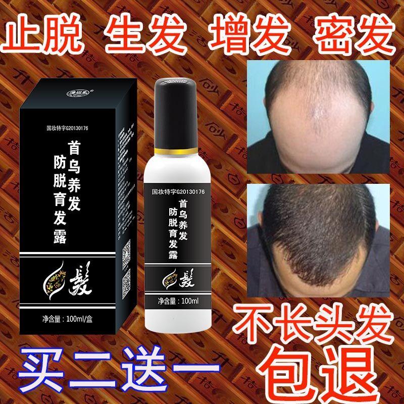 侧柏叶止脱脱发生增发生发液浓密防脱发生发增发密发男女士掉头发